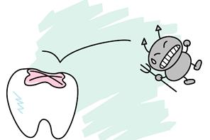 虫歯予防として歯の溝を埋める治療(シーラント)について