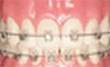 デーモンシステムでの歯科矯正