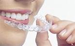 透明な取り外し式装置で歯科矯正